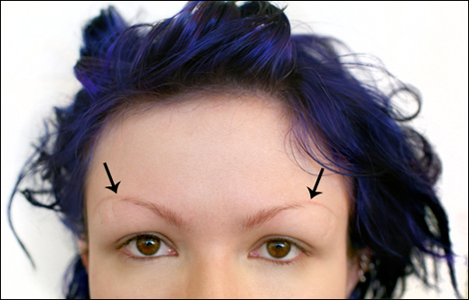 eyebrow_figure_1